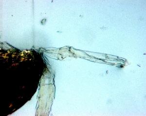 (Scolecitrichidae - BALAP16)  @11 [ ] Copyright (2011) Sergio Hernandez Trujillo Instituto Politecnico Nacional-cicimar