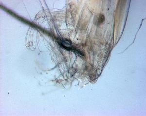 (Euchaeta longicornis - BALAP22)  @11 [ ] Copyright (2011) Sergio Hernandez Trujillo Instituto Politecnico Nacional-cicimar
