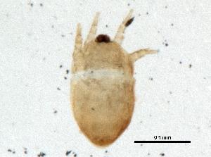 (Hemisarcoptidae - BIOUG10423-C03)  @13 [ ] CreativeCommons - Attribution Non-Commercial Share-Alike (2014) BIO Photography Group Biodiversity Institute of Ontario