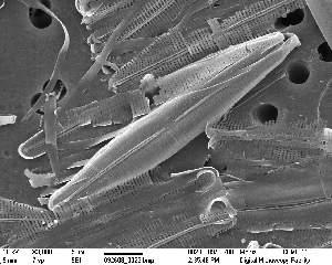 (Stauroneidaceae - IK_MTA362)  @11 [ ] by-nc-sa (2015) Jim Ehrman Mount Allison University