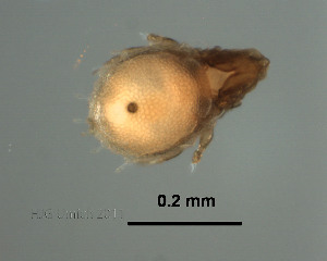 (Podopterotegaeidae - Ori17_W_1)  @11 [ ] Copyright (2011) Huijie Gan University of Michigan