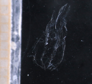 (Clausophyidae - HYPNO_121)  @11 [ ] by-nc-sa (2015) Aino Hosia University Museum of Bergen, Natural History Collections