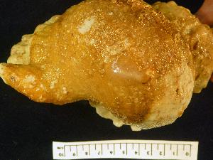 (Lepadiformes - OGL-E22688)  @13 [ ] Copyright (2011) Andrew Hosie/WA Museum Western Australian Museum
