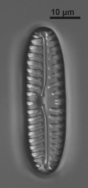 (Pinnulariaceae - VEGA L35C 20)  @11 [ ] Copyright (2014) Pieter Vanormelingen Ghent University
