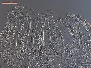 (Anoplotermes arachnis - UF_BO1024)  @11 [ ] Copyright (2014) Rudolf Scheffrahn University of Florida