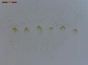 (Anoplotermes multipricatus - UF_BO116)  @11 [ ] Copyright (2014) Rudolf Scheffrahn University of Florida