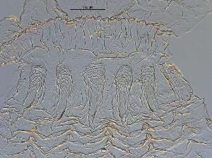 (Anoplotermes spinidotus - UF_PU255)  @11 [ ] Copyright (2014) Rudolf Scheffrahn University of Florida