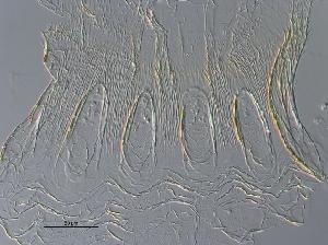(Anoplotermes fringiscalus - UF_PU666b)  @11 [ ] Copyright (2014) Rudolf Scheffrahn University of Florida