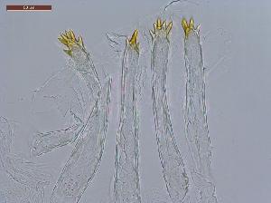 (Anoplotermes uniprictatus - UF_PU707b)  @11 [ ] Copyright (2014) Rudolf Scheffrahn University of Florida