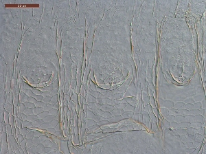 (Anoplotermes punctatum - UF_PU785)  @11 [ ] Copyright (2014) Rudolf Scheffrahn University of Florida